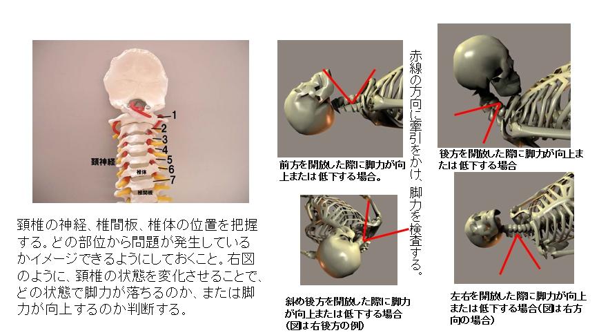 頚椎検査では頚椎の角度により、どの部位に原因があるのかを判断する。