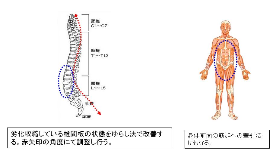 劣化収縮している椎間板の状態をゆらし法で改善する。赤矢印の角度にて調整し行う。身体前面の筋群への牽引法にもなる。