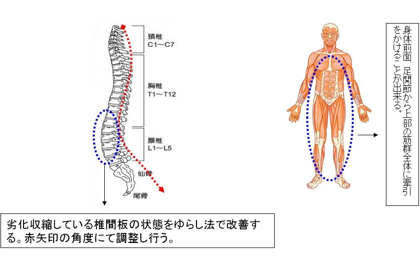 劣化収縮している椎間板の状態をゆらし法で改善する。