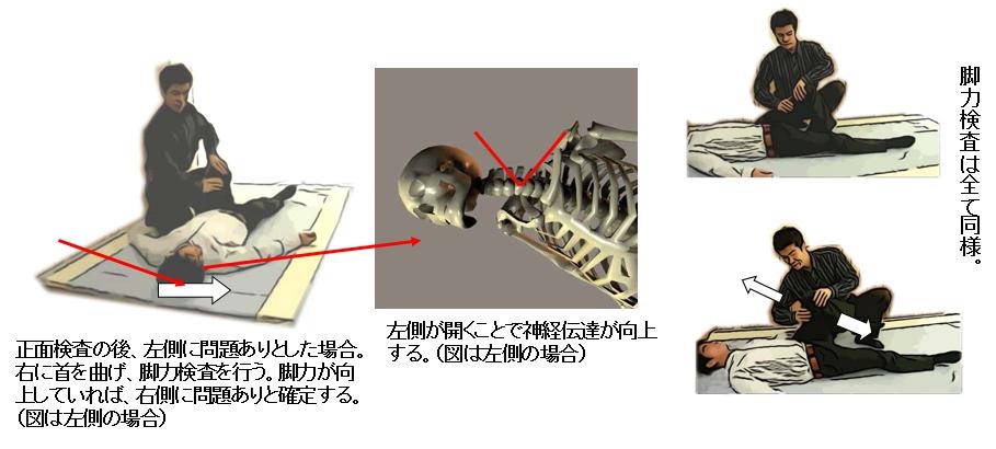 仰臥位で左右に向いての検査法。