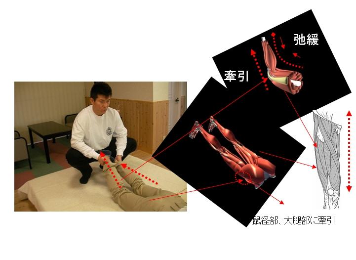 基本腰痛アプローチ法 両下肢牽引