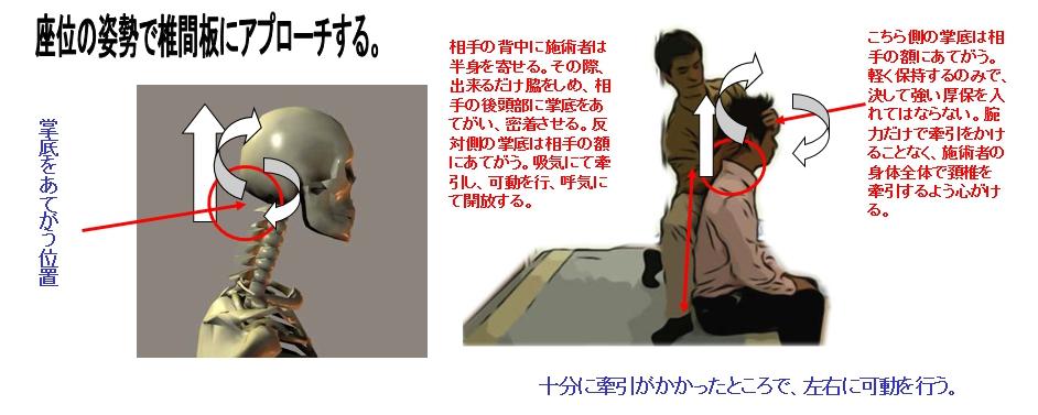 座位の姿勢で椎間板にアプローチする