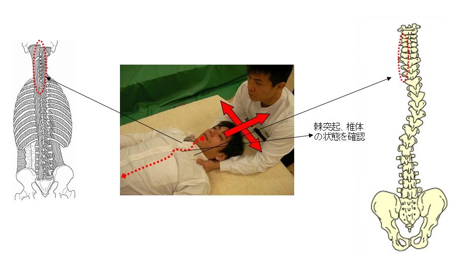基本腰痛アプローチ法<仰臥位頸椎棘突起捻じれ解消牽引ゆらし動作>