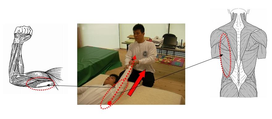 基本腰痛アプローチ法<仰臥位片腕上方牽引>