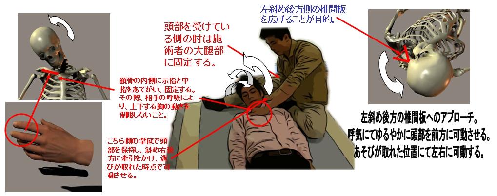 22.左後方の椎間板調整法/仰臥位(首の痛み・寝違い等)