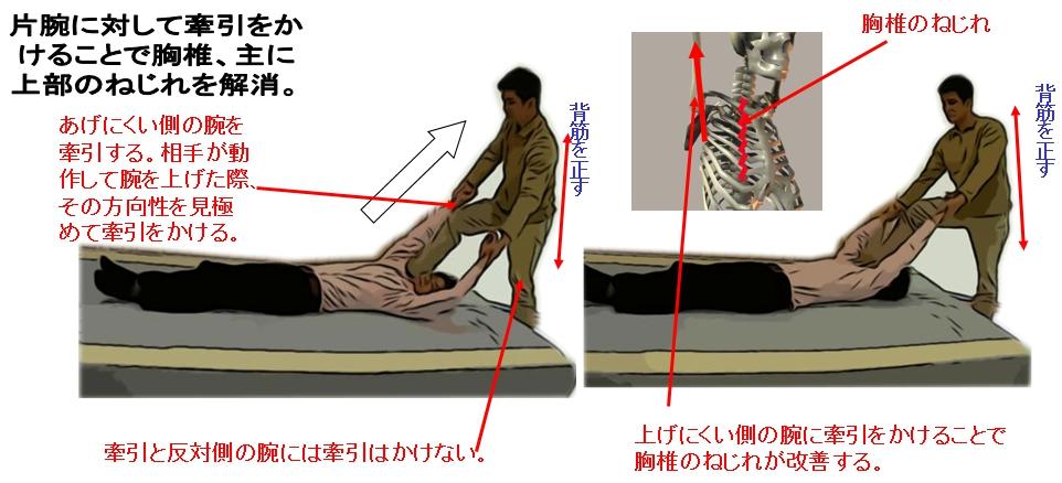 挙上検査にて上がらないほうの腕から行い、最後に再度上がらないほうの腕を行い終了。