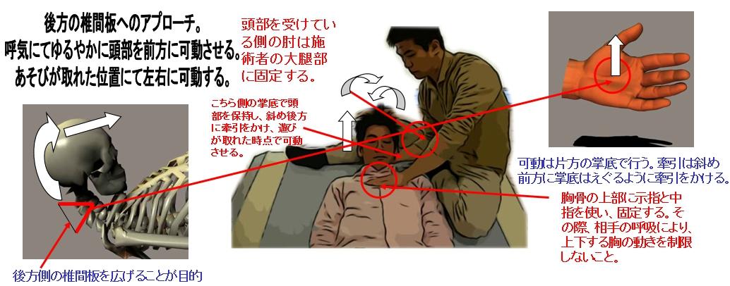 頚椎後方側の椎間板の調整は、図のように相手の側面に位置し行う。