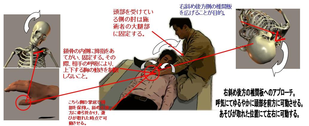 21.右後方の椎間板調整法/仰臥位(首の痛み・寝違い等)