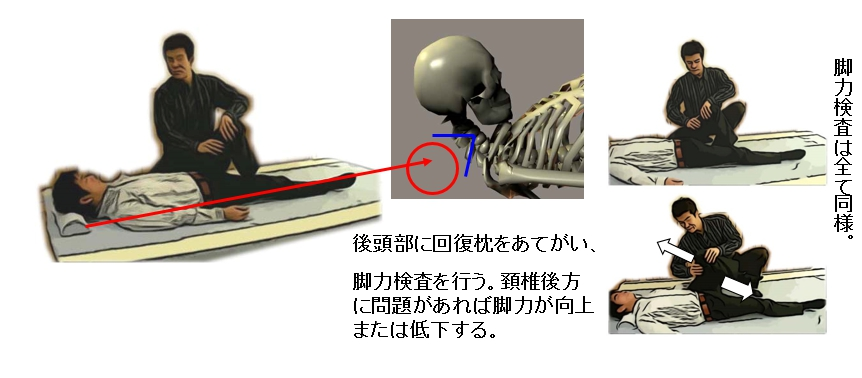 頚椎検査法(後方回復枕を用いて)