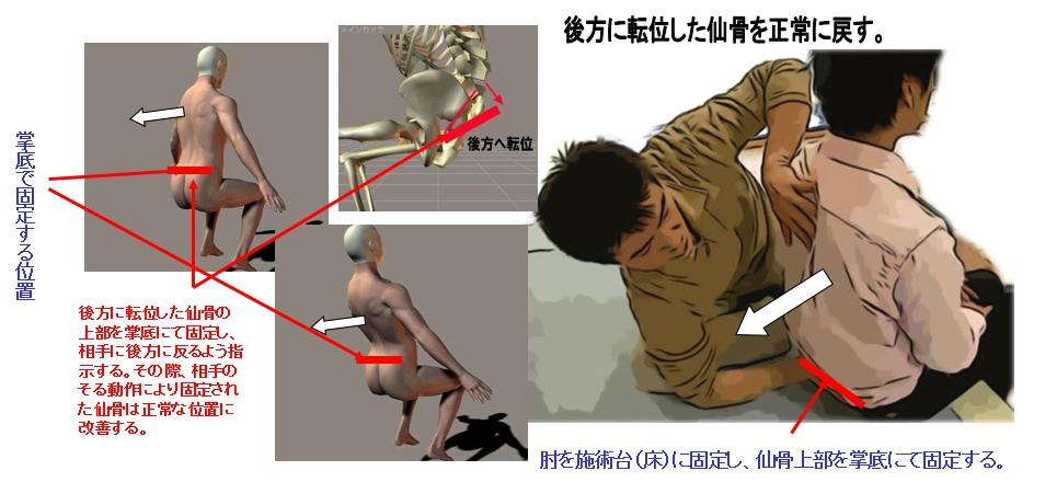 後方に転位した仙骨を正常に戻す