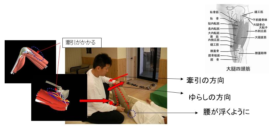 基本腰痛アプローチ法<仰臥位片足膝縦牽引動作>