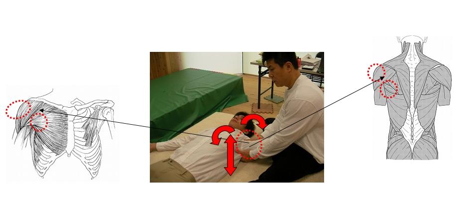 基本腰痛アプローチ法<仰臥位片腕上方ゆらし動作>