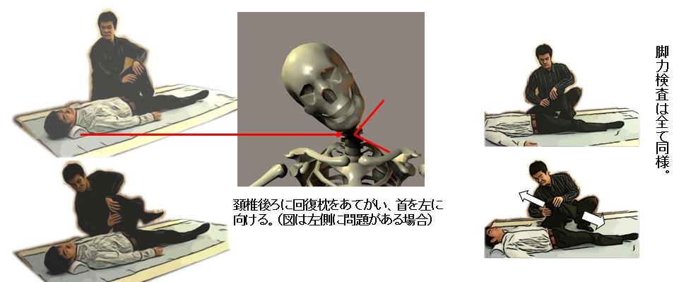 回復枕をあてがい、相手に頚椎を右(図の場合)に向けるよう指示し、脚力検査を行う。
