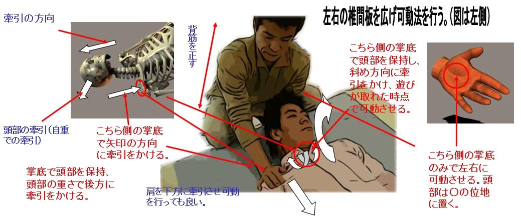 前面の椎間板調整法と同様に片方の掌底を使い左右どちからの椎間板に対してアプローチをかける。