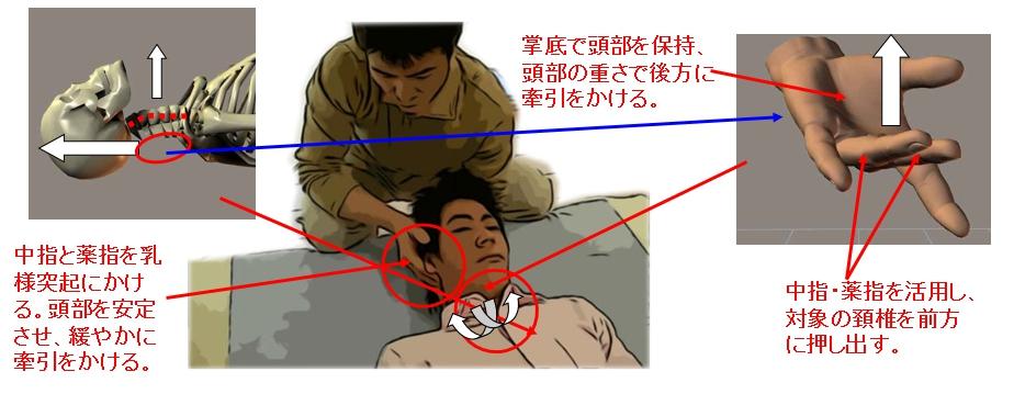 頚椎椎間板前面の調整。片方の掌底で相手の高等部を保持。