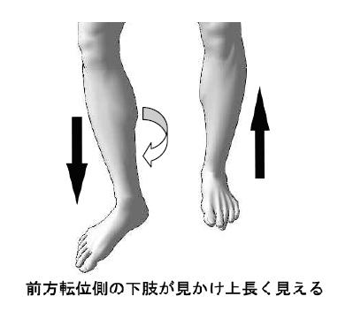 前方転位側の下肢が見かけ上低い