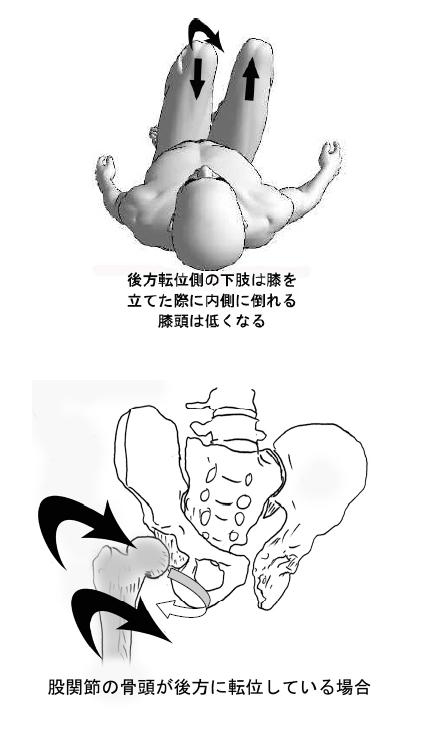 顔の歪み/小顔/顎の痛み