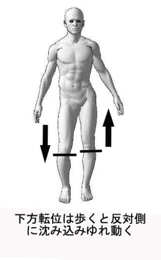 股関節の痛みで歩行困難