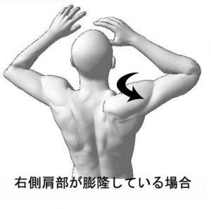 肩が痛くて眠れない