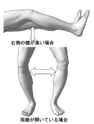 標準アプローチ法実技解説 /O脚/X脚