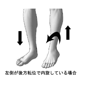 子供の股関節痛/成長痛/オスグット病