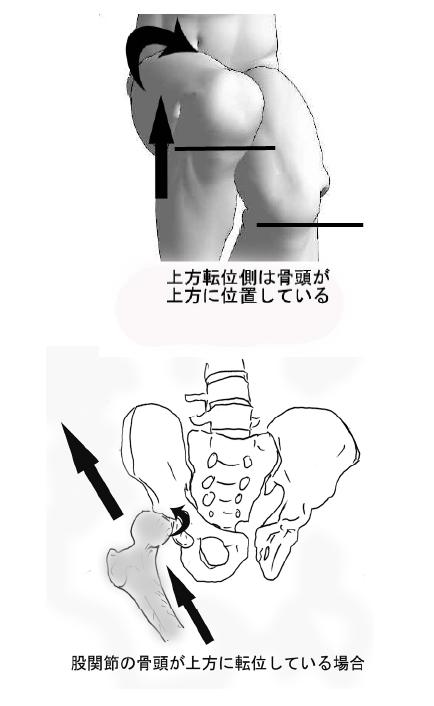 ムチウチ症/頸椎ヘルニアの痛み