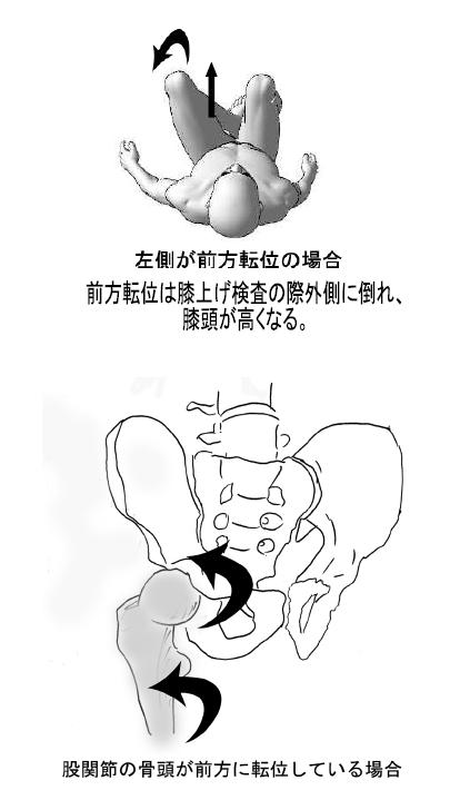股関節の痛み/股関節の手術不要