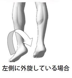 足の指が痛い/足の指突き指