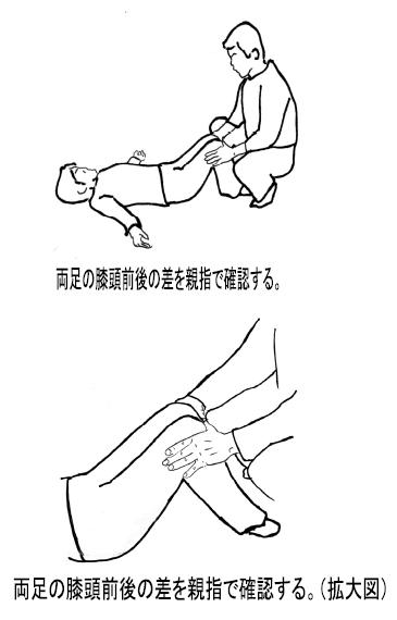 標準アプローチ法実技解説 /膝が伸びない/膝が曲がらない