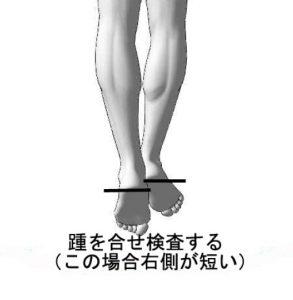 踵の痛み/ふくらはぎ痛