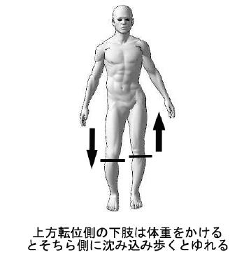 片方の足が人口の股関節
