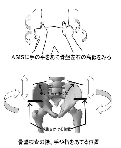 標準アプローチ法実技解説 /スポーツ後遺症/椎間板ヘルニア
