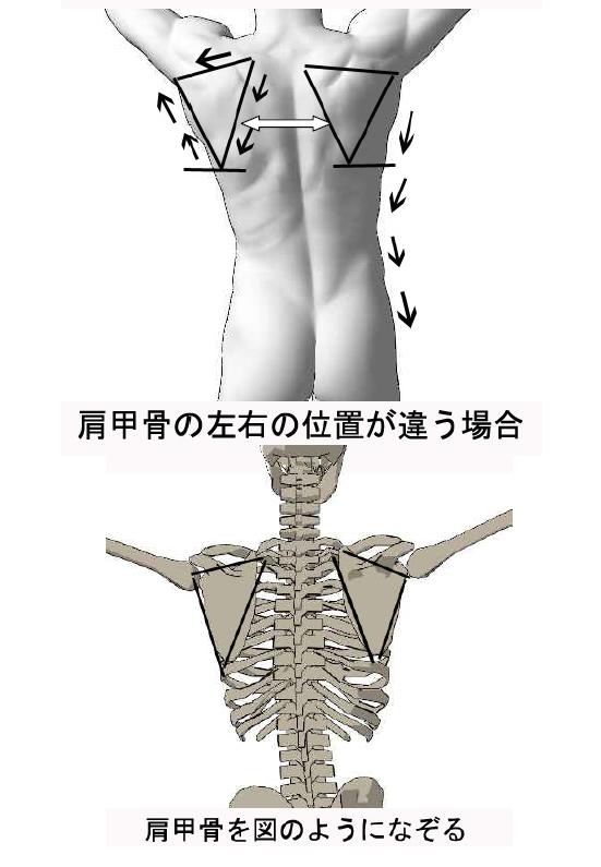 肩甲骨の痛み/肩甲骨動かない