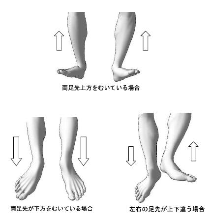 標準アプローチ法実技解説 /両脚先の方向/歪みねじれ腰痛解消整体