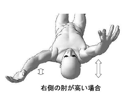 標準アプローチ法実技解説 /慢性痛/神経痛