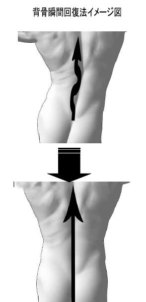 瞬間に棘突起の位置が正常位置にもどることを確認