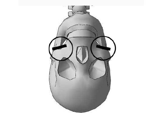 実際の頬骨の突起より少し下の位置となる